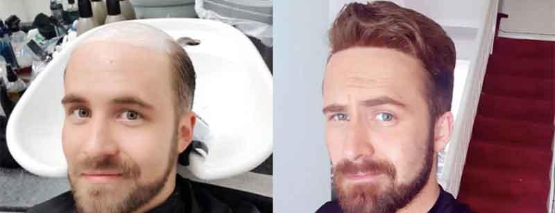 protesis capilar de hombre indetectable antes y después