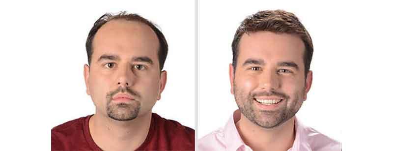 protesis capilares para hombres indetectables antes y después