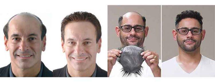 protesis capilares indetectables para hombre antes y después