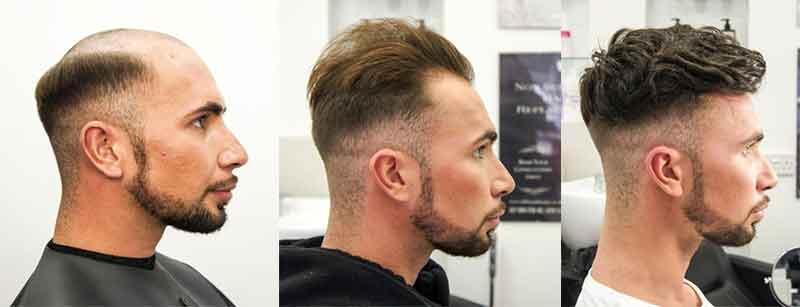 protesis capilar para hombre antes y después