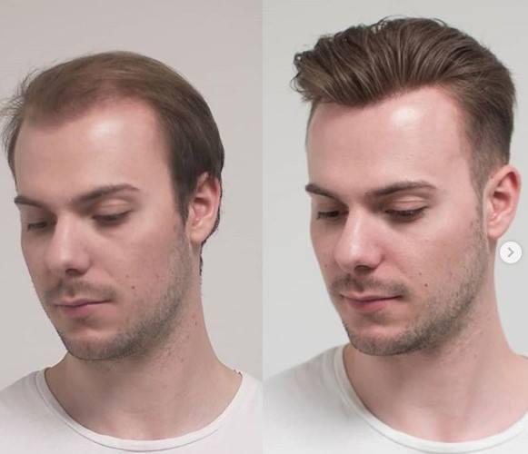 protesis capilar de lace o malla antes y despues
