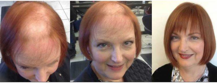 protesis capilar de mujer antes y después